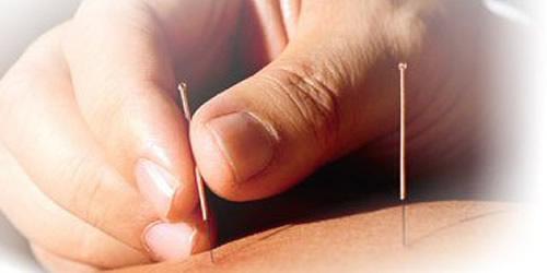 cc-mao-acupuntura