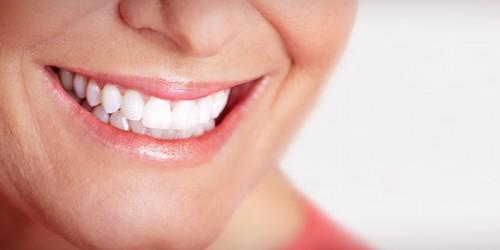 Què són els implants dentals