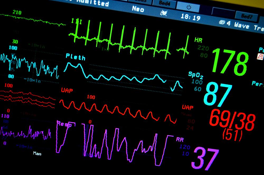 classificació i factors de risc de la hipertensió