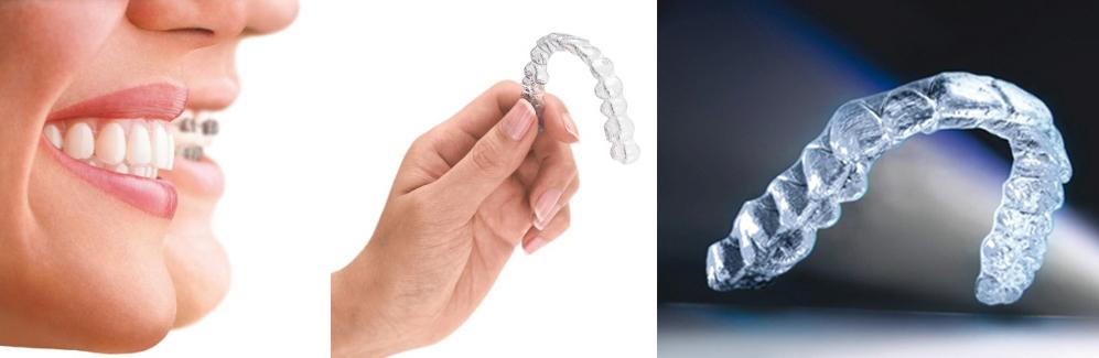 invisalign_ la alternativa a la ortodoncia clásica