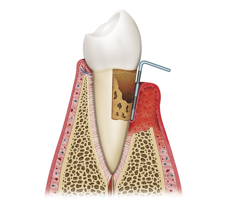 simptomatologia de la periodontitis