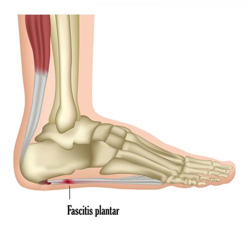 fascitis plantar_lesiones corredores_running