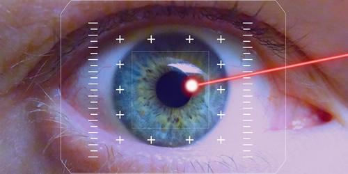ca-cirurgia-refractiva
