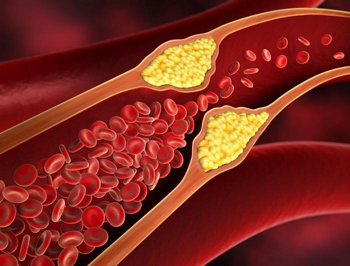 colesterol_factors de risc i prevenció