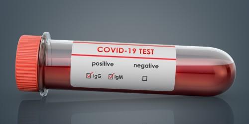 Coronavirus test, COVID-19. Test tube with positive blood samples for Coronavirus test COVID-19, 3D rendering