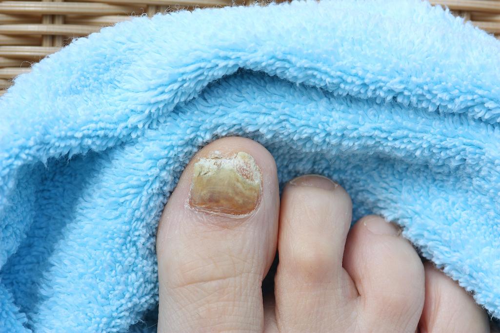 Fongs a les ungles dels peus